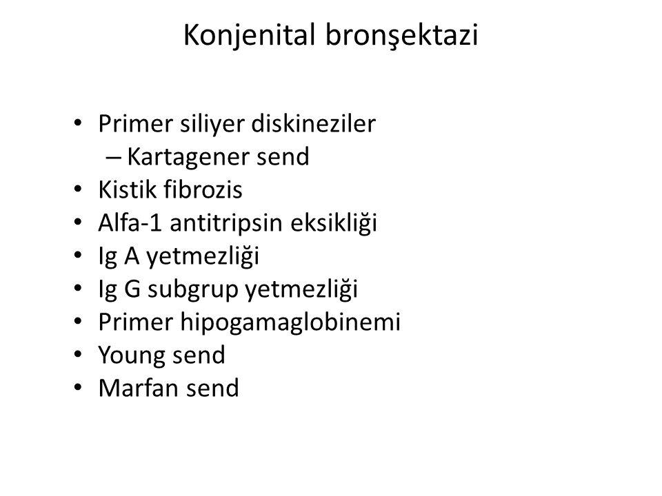 Konjenital bronşektazi