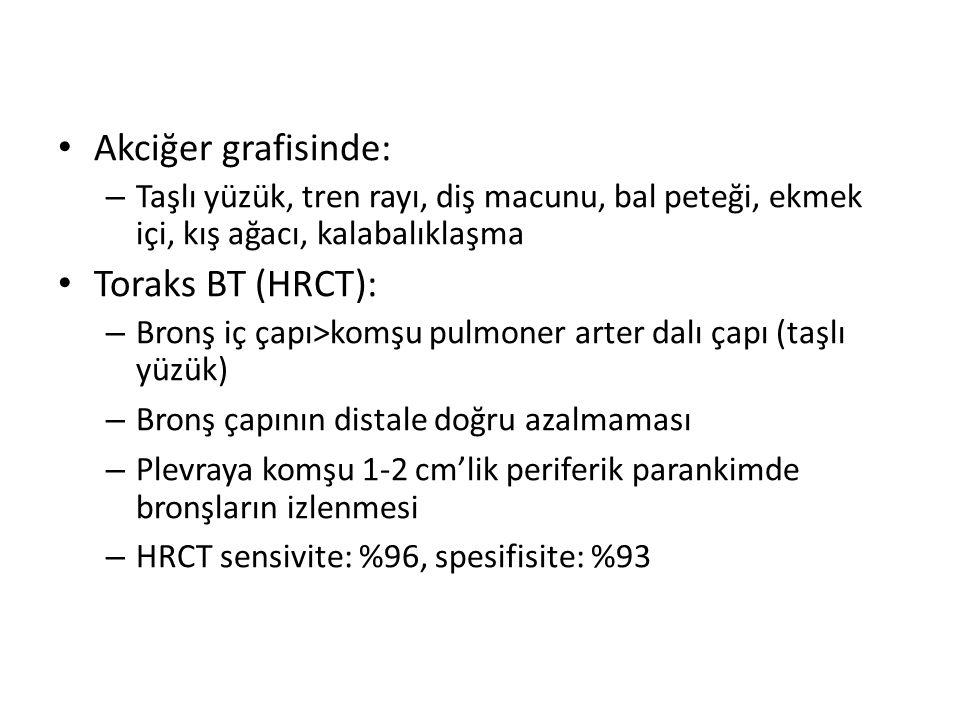 Akciğer grafisinde: Toraks BT (HRCT):
