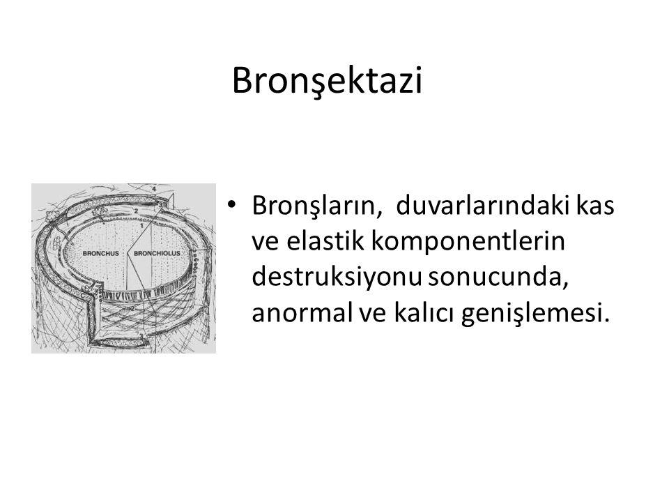 Bronşektazi Bronşların, duvarlarındaki kas ve elastik komponentlerin destruksiyonu sonucunda, anormal ve kalıcı genişlemesi.