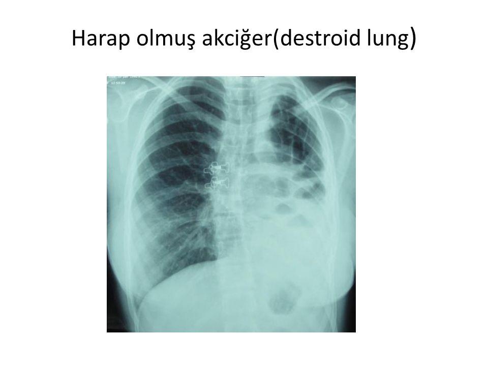 Harap olmuş akciğer(destroid lung)