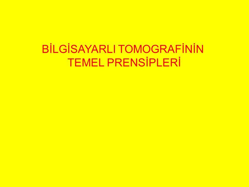 BİLGİSAYARLI TOMOGRAFİNİN