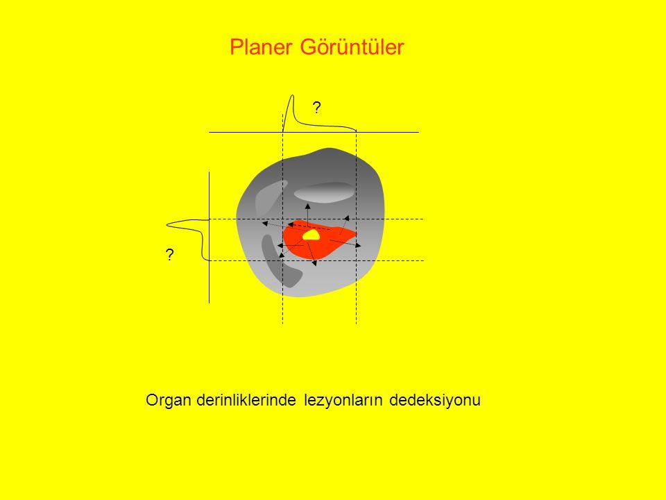 Planer Görüntüler Organ derinliklerinde lezyonların dedeksiyonu