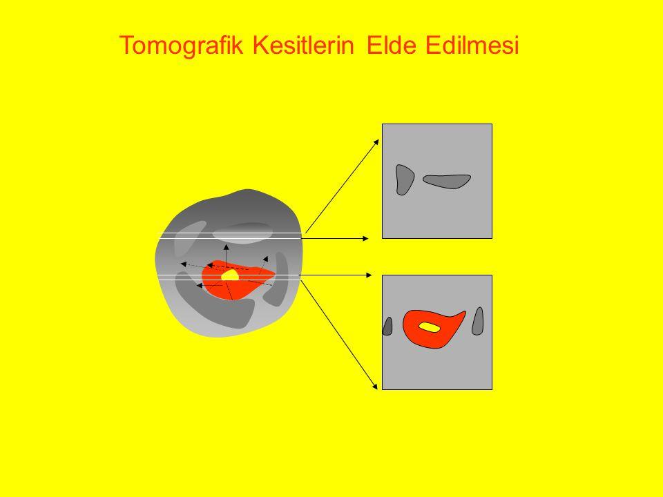 Tomografik Kesitlerin Elde Edilmesi
