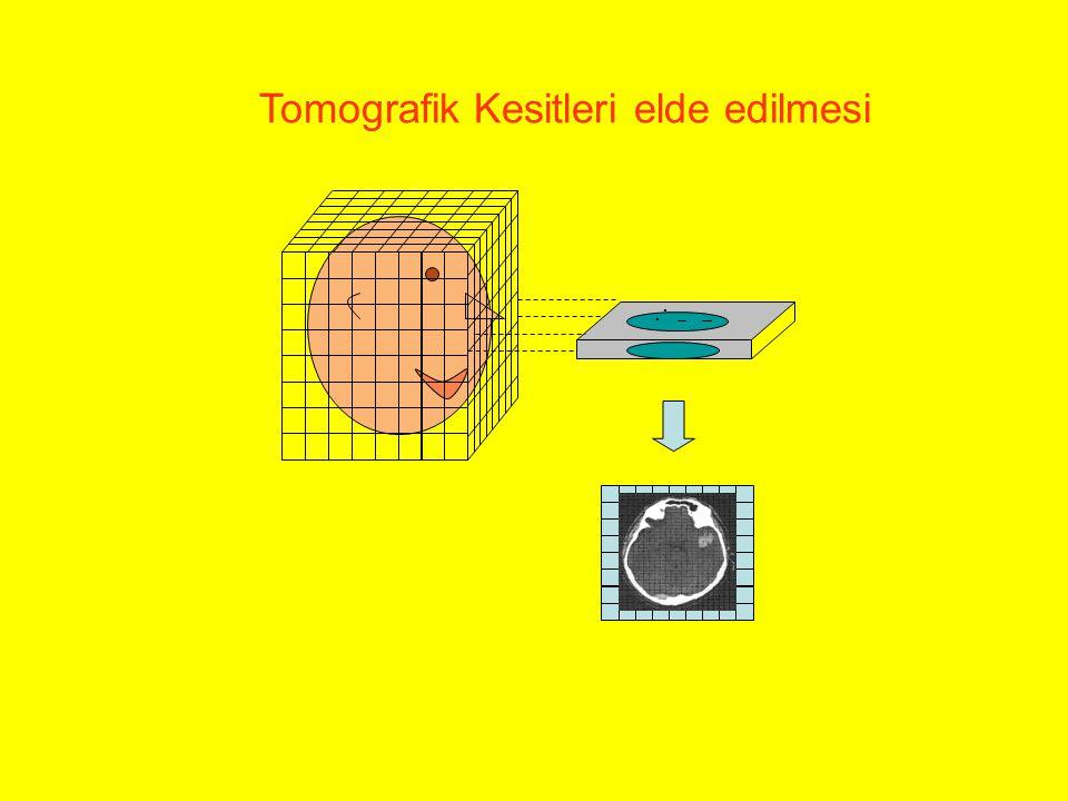 Tomografik Kesitleri elde edilmesi