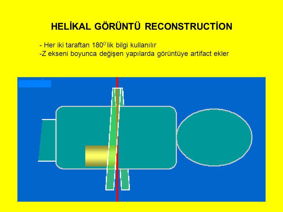 HELİKAL GÖRÜNTÜ RECONSTRUCTİON