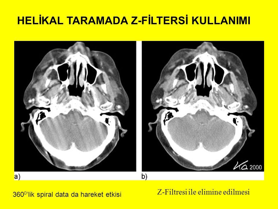 HELİKAL TARAMADA Z-FİLTERSİ KULLANIMI