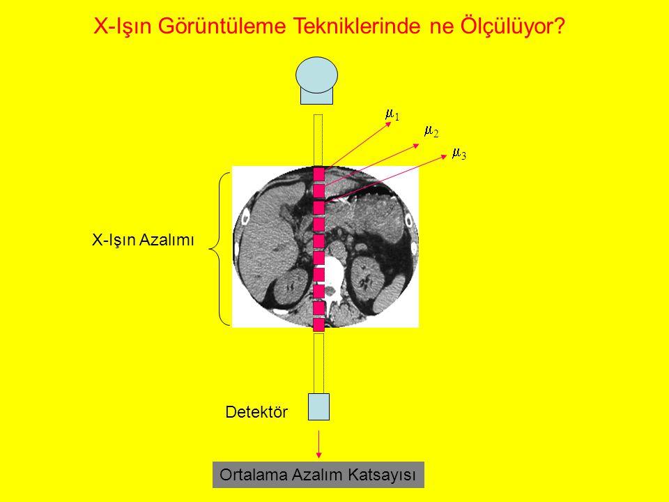 X-Işın Görüntüleme Tekniklerinde ne Ölçülüyor
