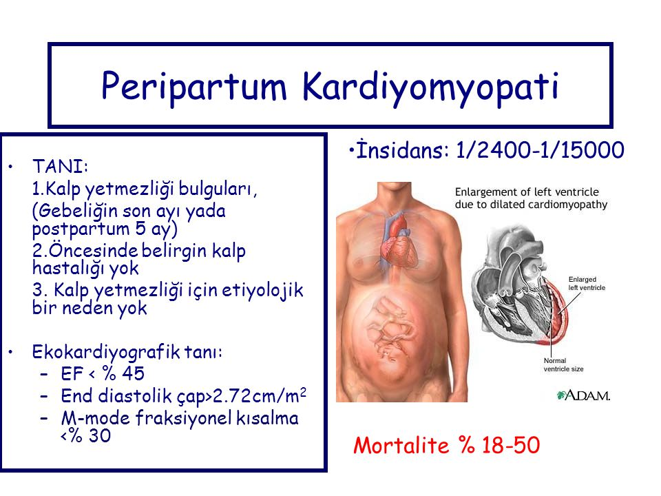 Peripartum Kardiyomyopati