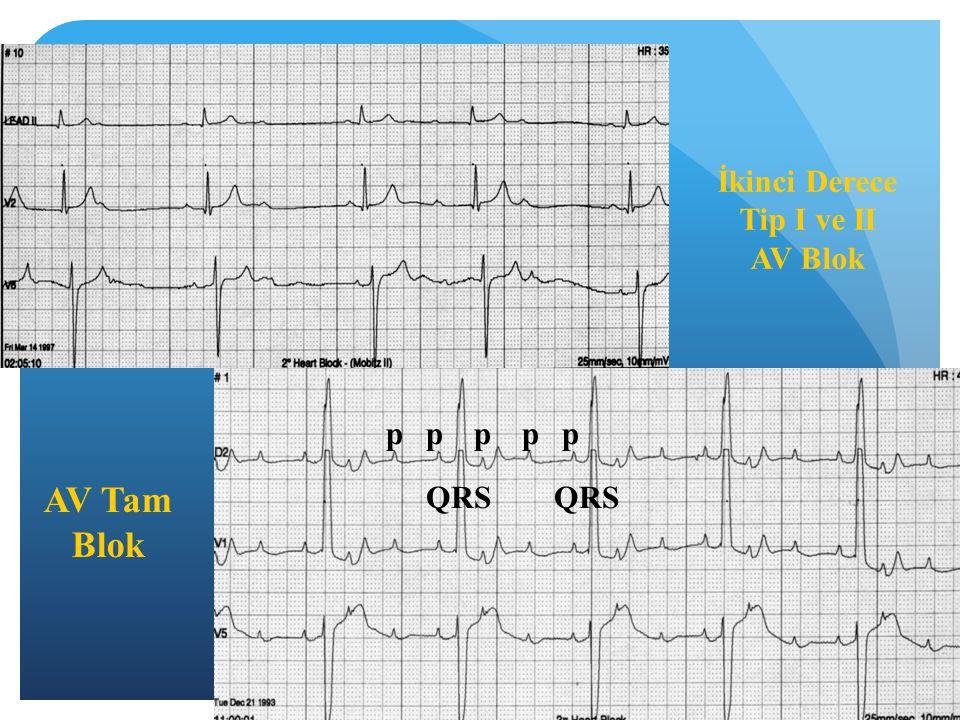 İkinci Derece Tip I ve II AV Blok p p p p p AV Tam Blok QRS QRS
