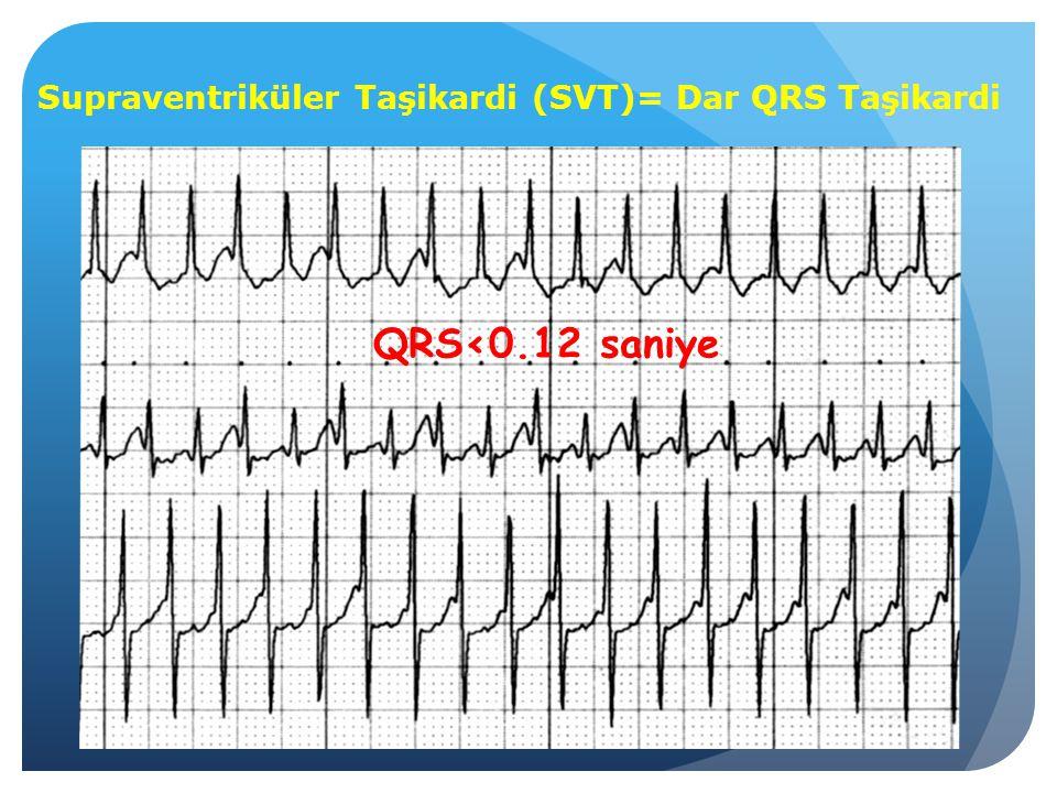 Supraventriküler Taşikardi (SVT)= Dar QRS Taşikardi