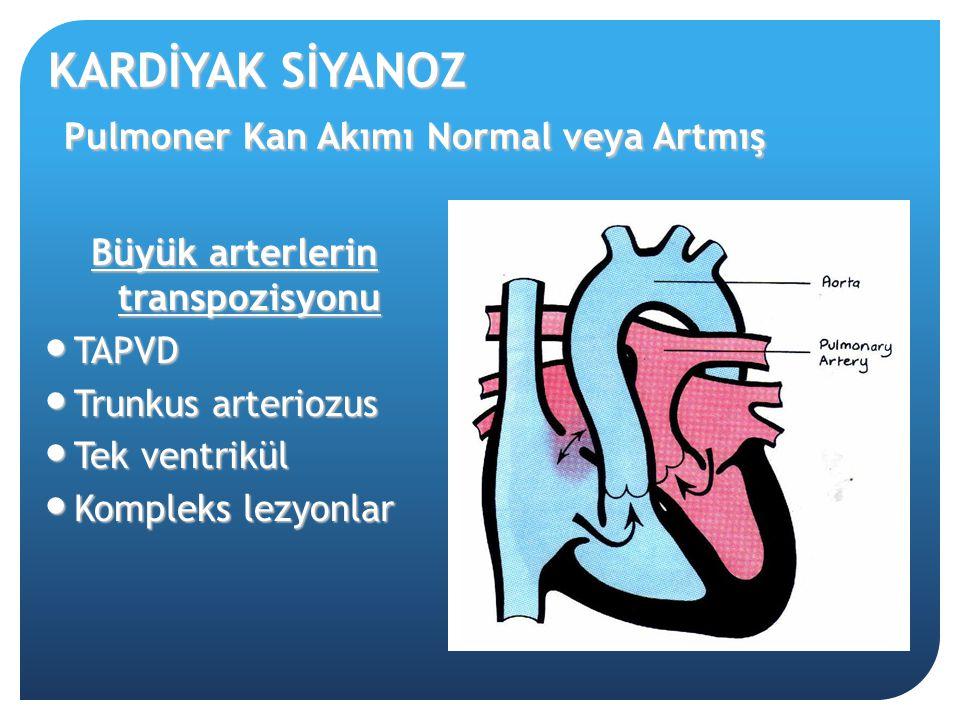 KARDİYAK SİYANOZ Pulmoner Kan Akımı Normal veya Artmış