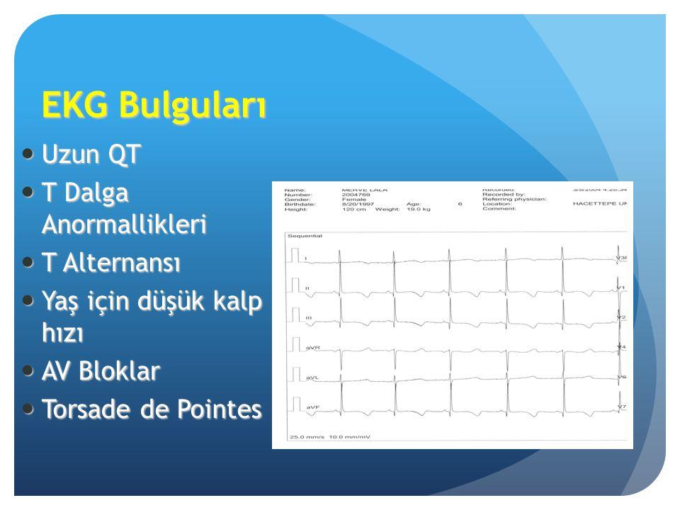 EKG Bulguları Uzun QT T Dalga Anormallikleri T Alternansı