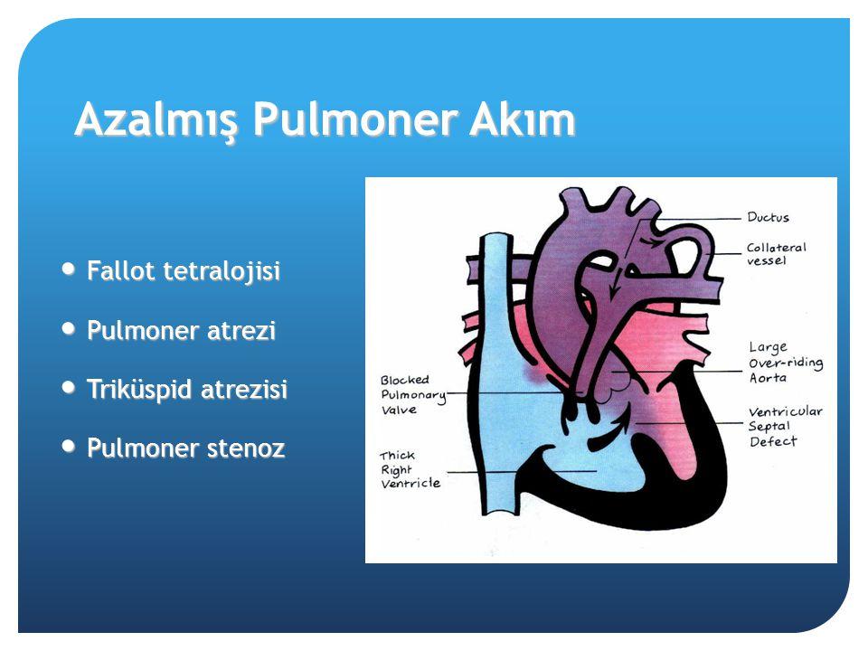 Azalmış Pulmoner Akım Fallot tetralojisi Pulmoner atrezi