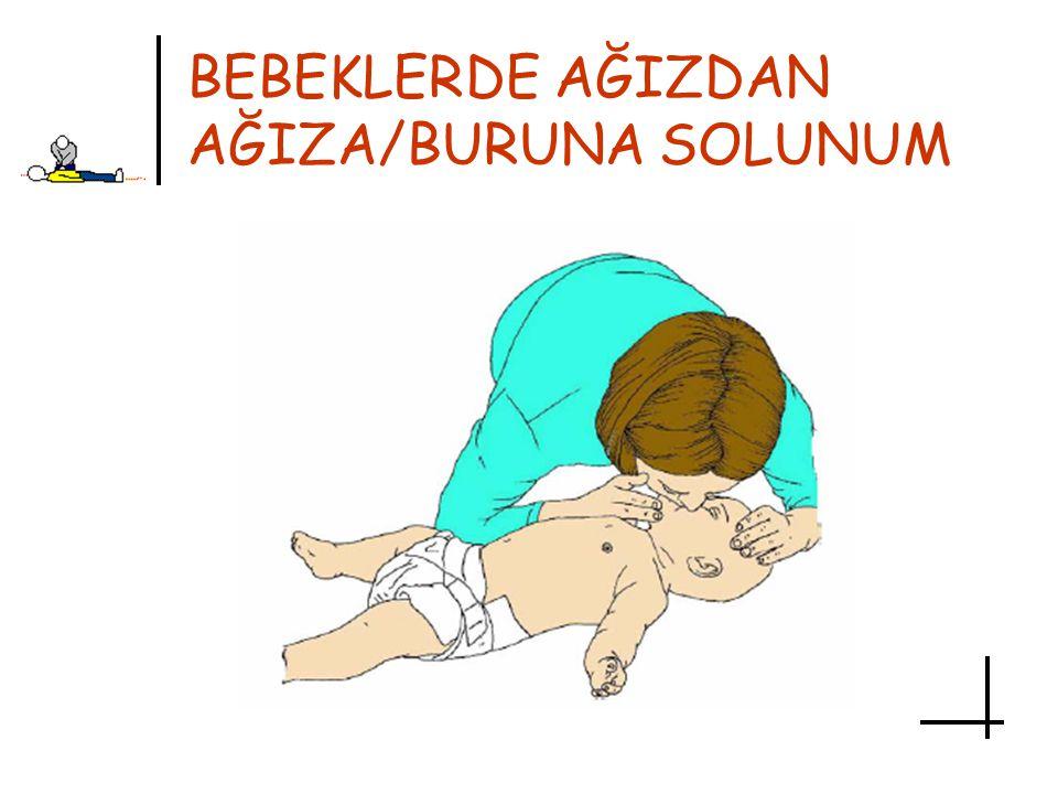 BEBEKLERDE AĞIZDAN AĞIZA/BURUNA SOLUNUM