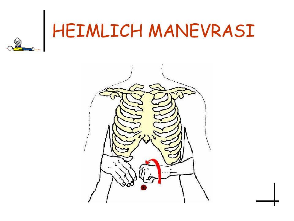 HEIMLICH MANEVRASI