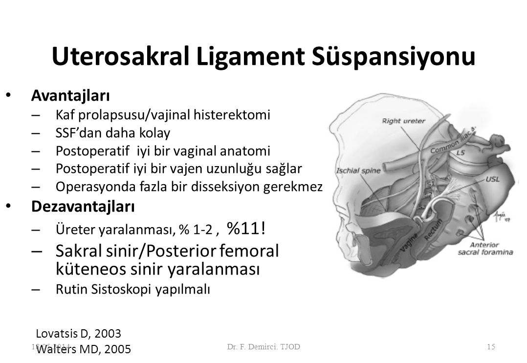 Uterosakral ligament süspansiyonu