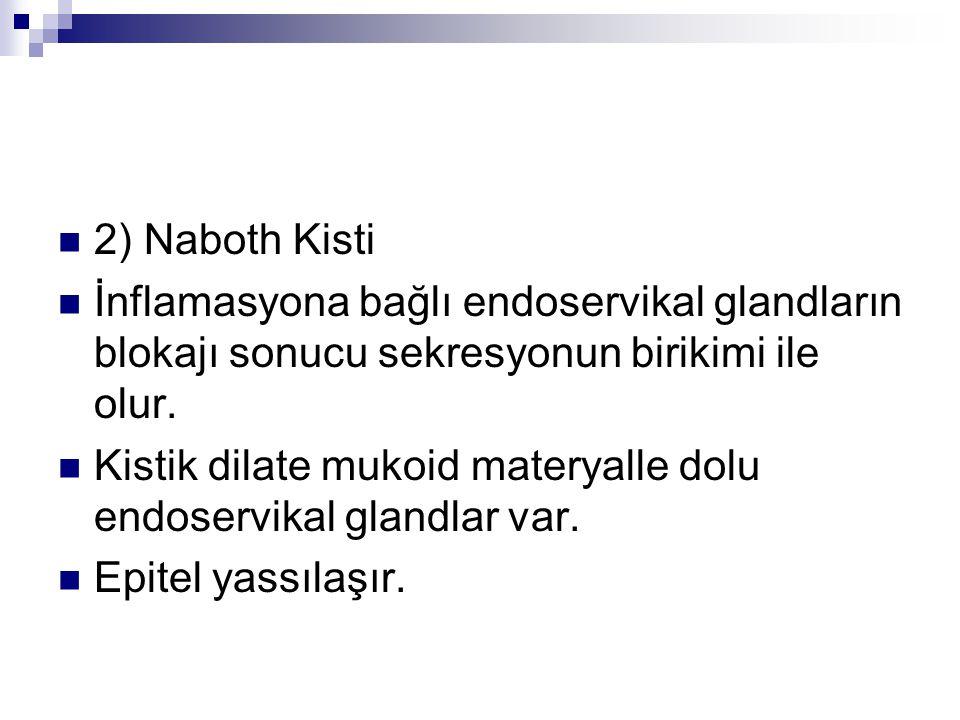 2) Naboth Kisti İnflamasyona bağlı endoservikal glandların blokajı sonucu sekresyonun birikimi ile olur.