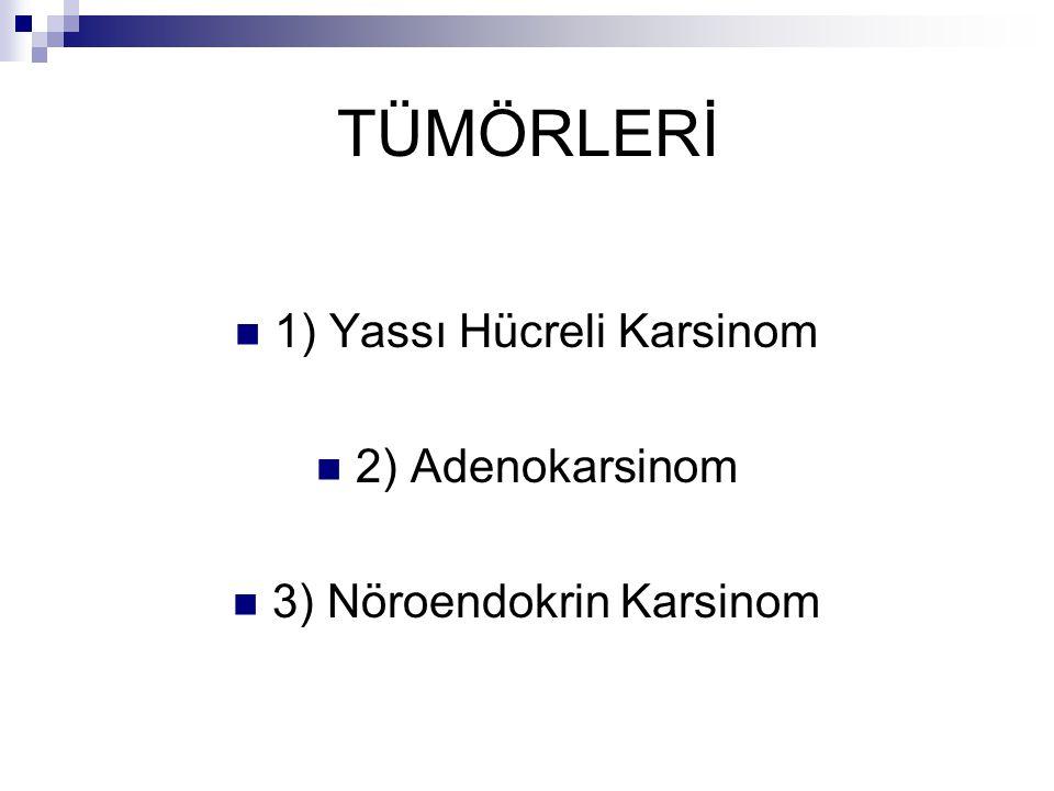 TÜMÖRLERİ 1) Yassı Hücreli Karsinom 2) Adenokarsinom