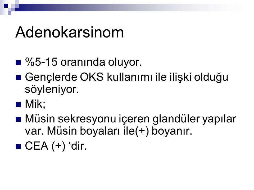 Adenokarsinom %5-15 oranında oluyor.