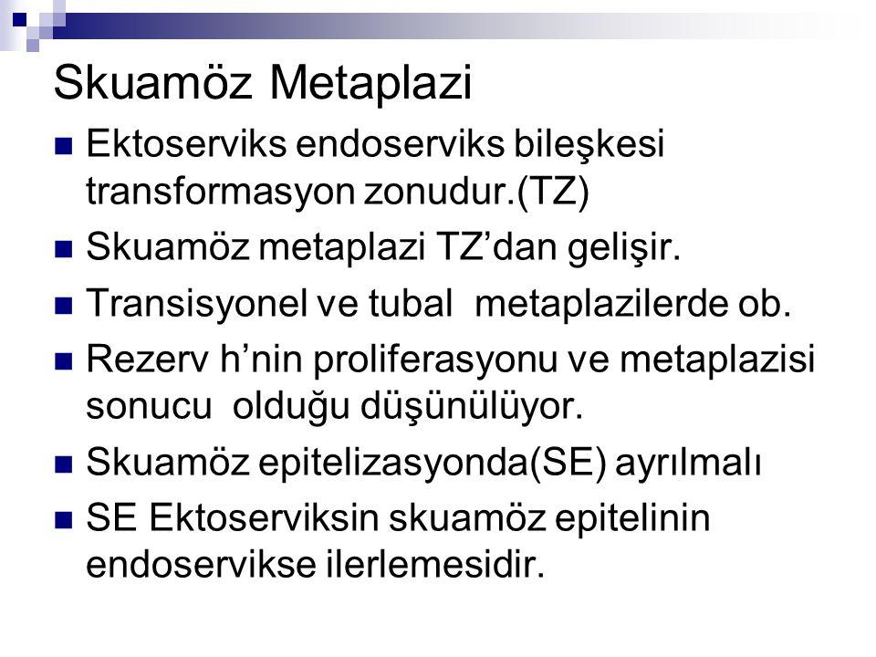 Skuamöz Metaplazi Ektoserviks endoserviks bileşkesi transformasyon zonudur.(TZ) Skuamöz metaplazi TZ'dan gelişir.