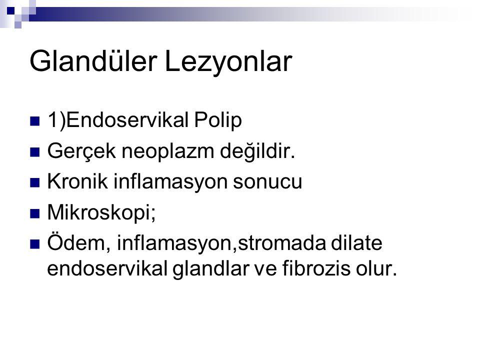 Glandüler Lezyonlar 1)Endoservikal Polip Gerçek neoplazm değildir.