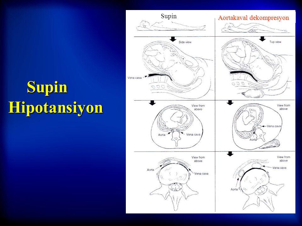 Supin Aortakaval dekompresyon Supin Hipotansiyon