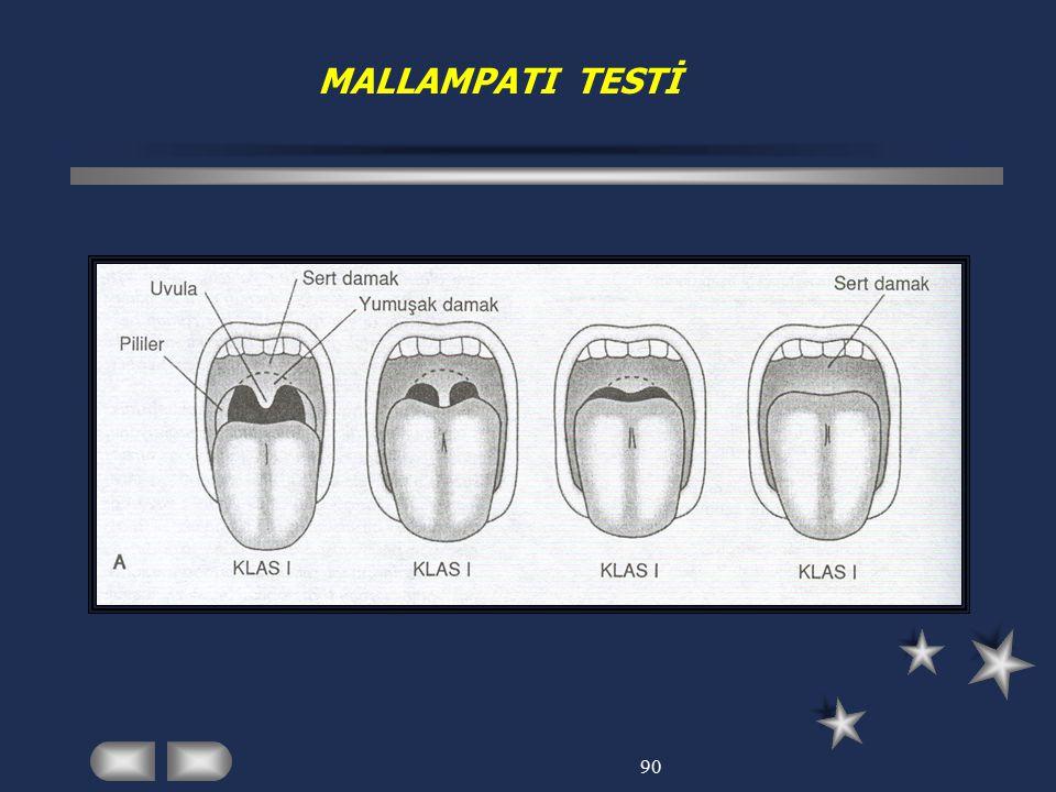 MALLAMPATI TESTİ 90