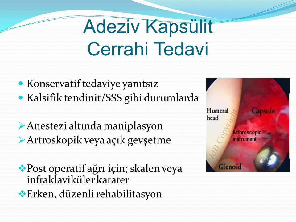 Adeziv Kapsülit Cerrahi Tedavi
