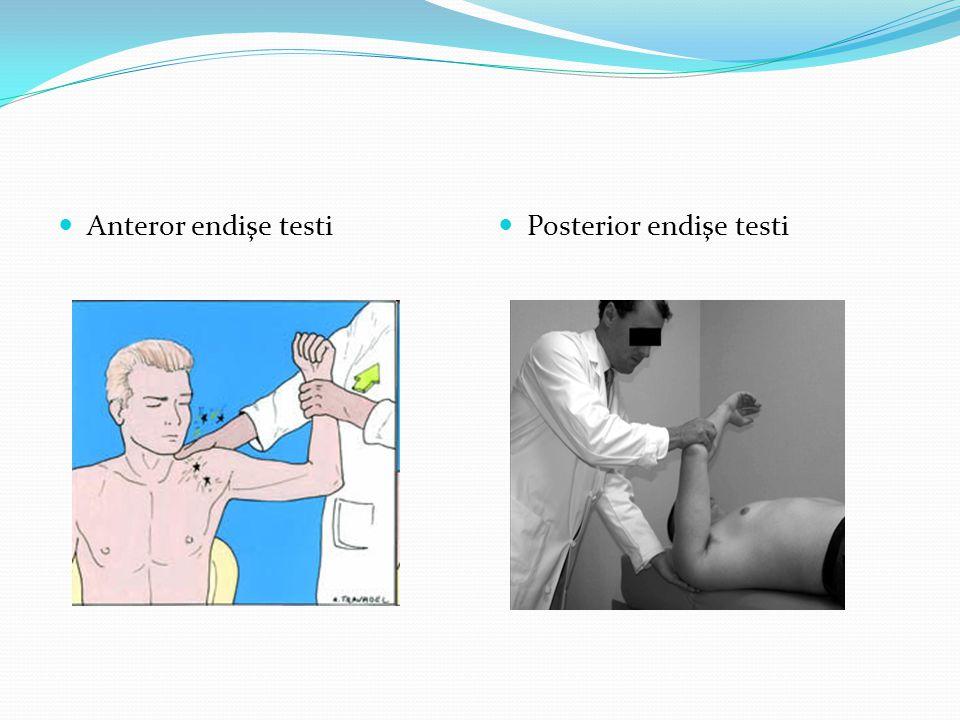 Anteror endişe testi Posterior endişe testi