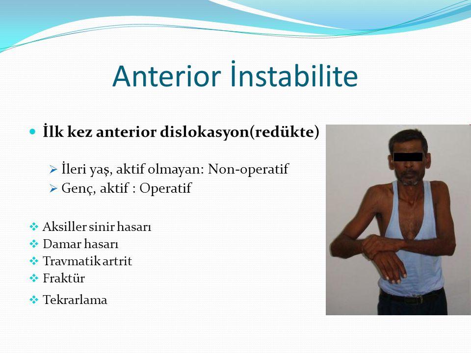 Anterior İnstabilite İlk kez anterior dislokasyon(redükte)