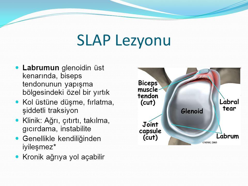 SLAP Lezyonu Labrumun glenoidin üst kenarında, biseps tendonunun yapışma bölgesindeki özel bir yırtık.
