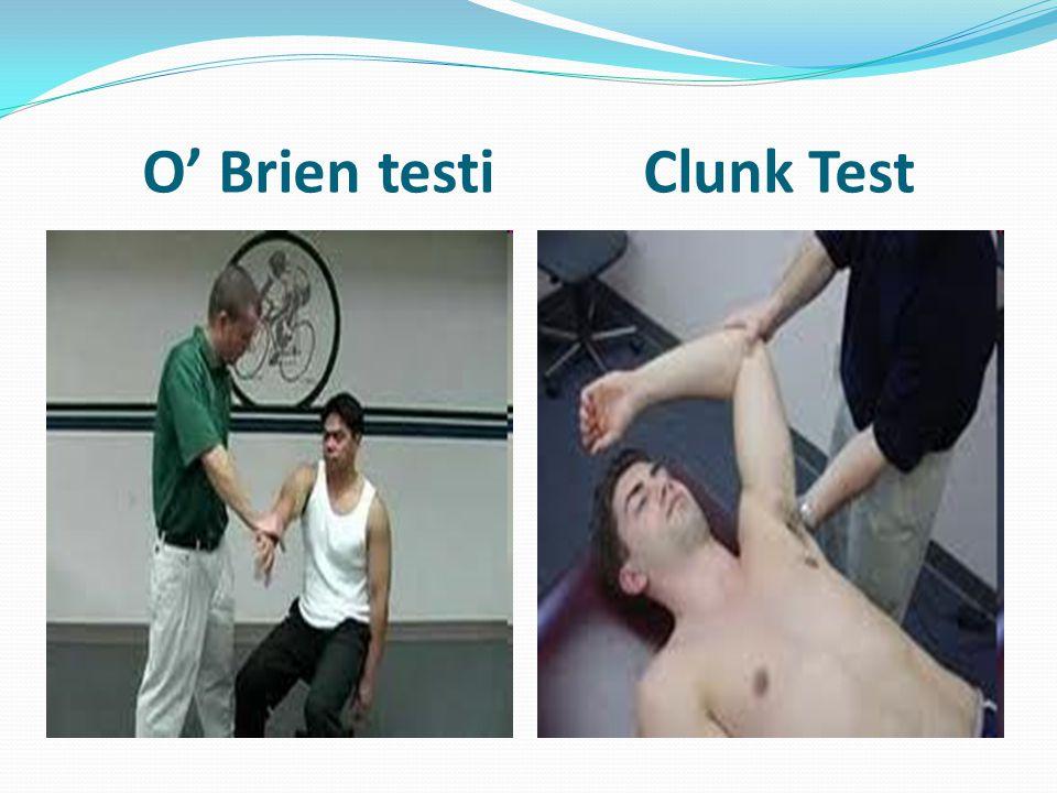 O' Brien testi Clunk Test
