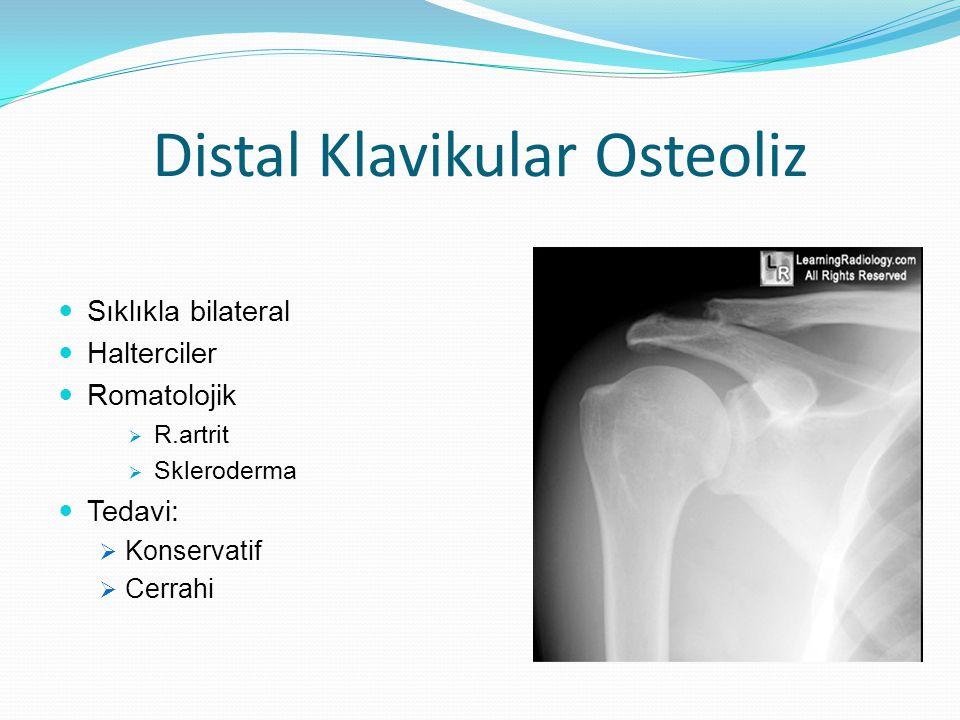 Distal Klavikular Osteoliz
