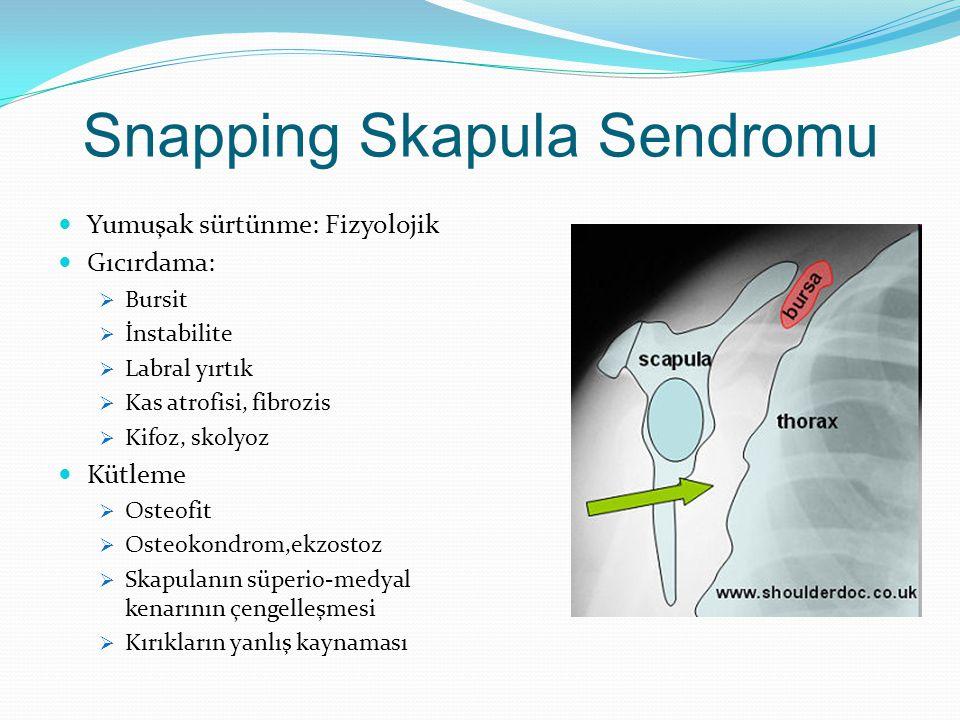 Snapping Skapula Sendromu