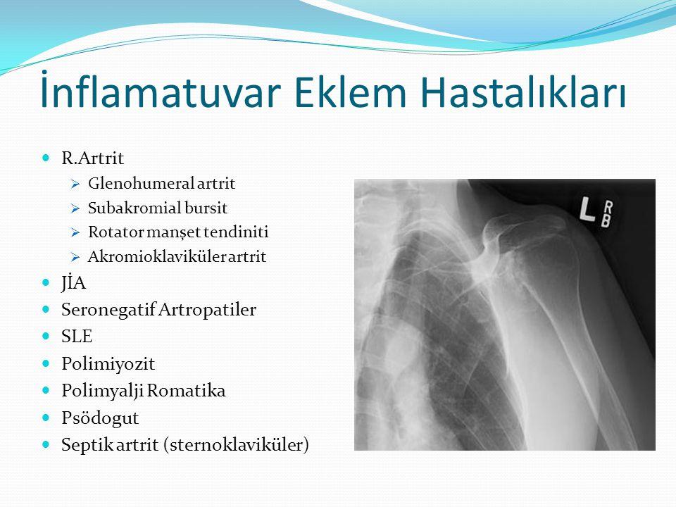 İnflamatuvar Eklem Hastalıkları