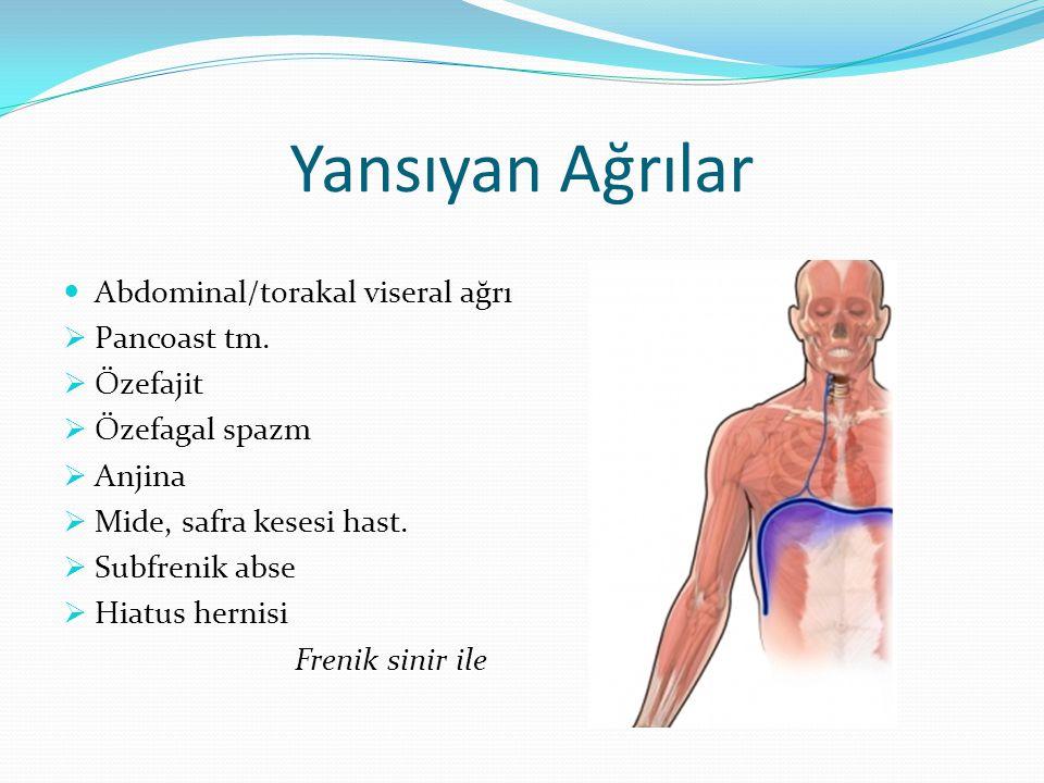 Yansıyan Ağrılar Abdominal/torakal viseral ağrı Pancoast tm. Özefajit