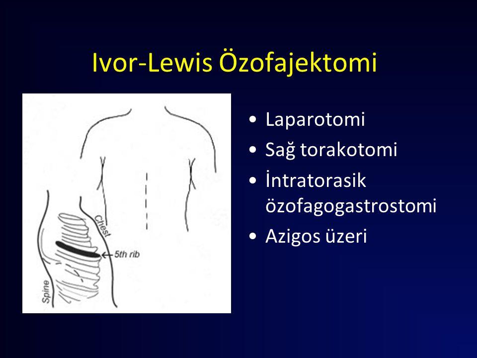 Ivor-Lewis Özofajektomi