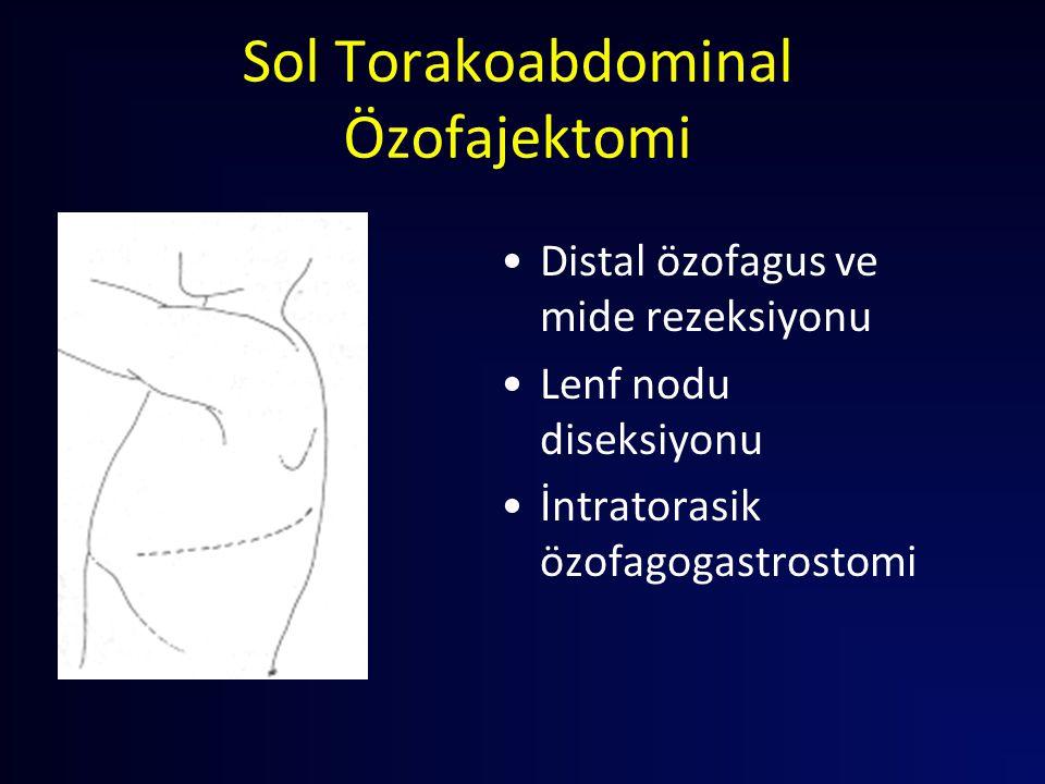 Sol Torakoabdominal Özofajektomi