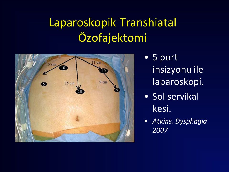 Laparoskopik Transhiatal Özofajektomi