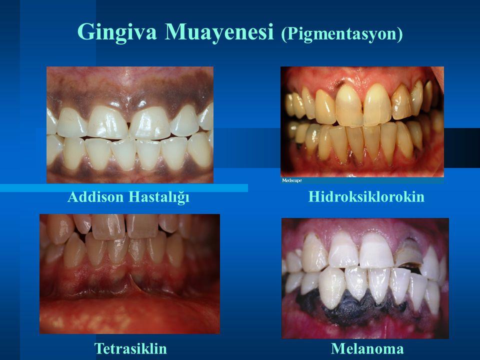 Gingiva Muayenesi (Pigmentasyon)