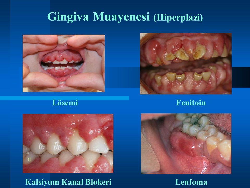 Gingiva Muayenesi (Hiperplazi)