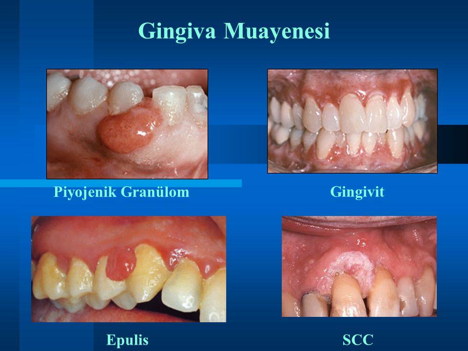 Gingiva Muayenesi Piyojenik Granülom Gingivit ii Epulis SCC