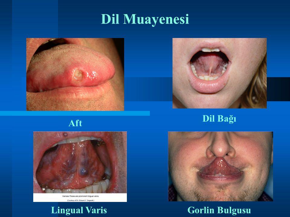 Dil Muayenesi Dil Bağı Aft ii Lingual Varis Gorlin Bulgusu