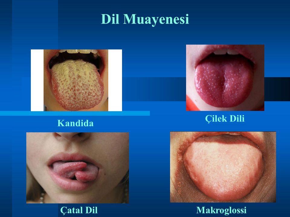 Dil Muayenesi Çilek Dili Kandida ii Çatal Dil Makroglossi