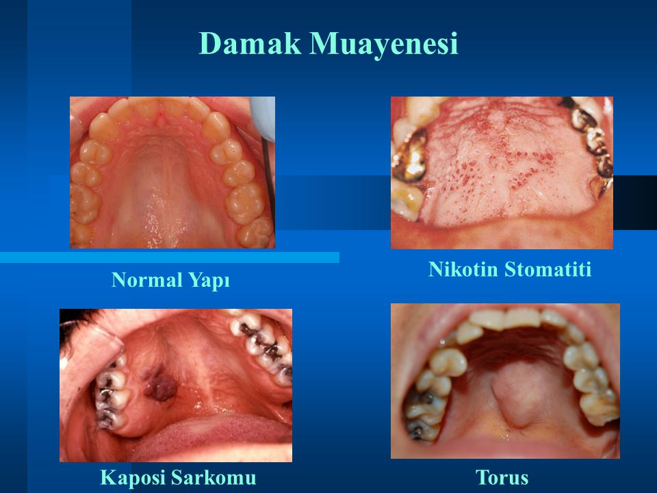 Damak Muayenesi Nikotin Stomatiti Normal Yapı ii Kaposi Sarkomu Torus