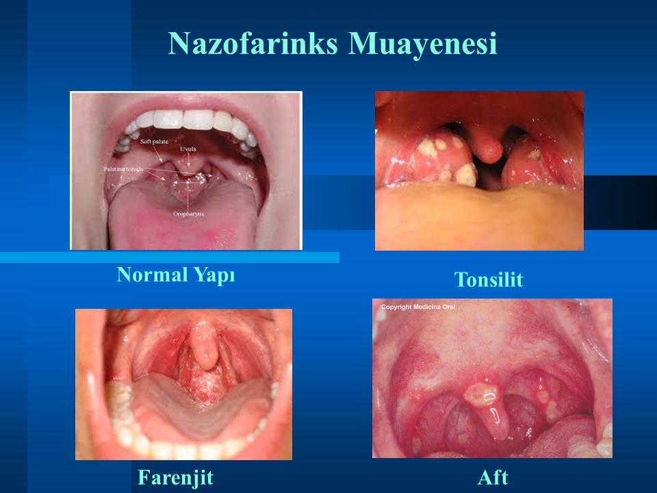 Nazofarinks Muayenesi