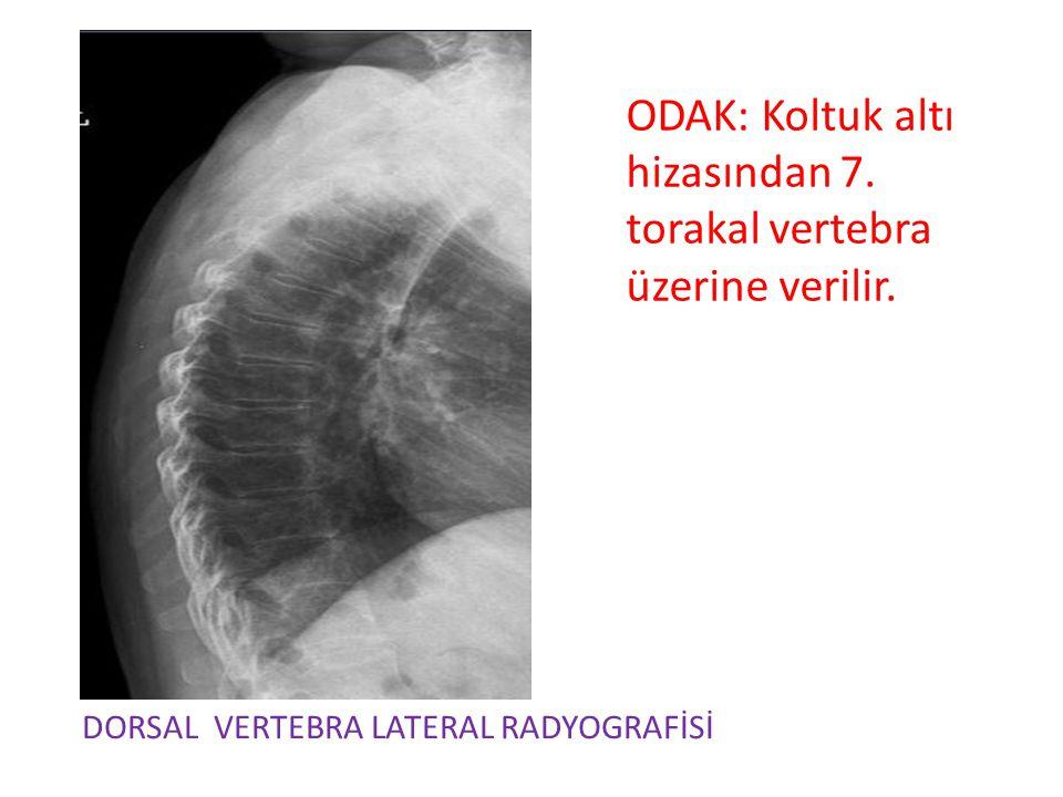 ODAK: Koltuk altı hizasından 7. torakal vertebra üzerine verilir.