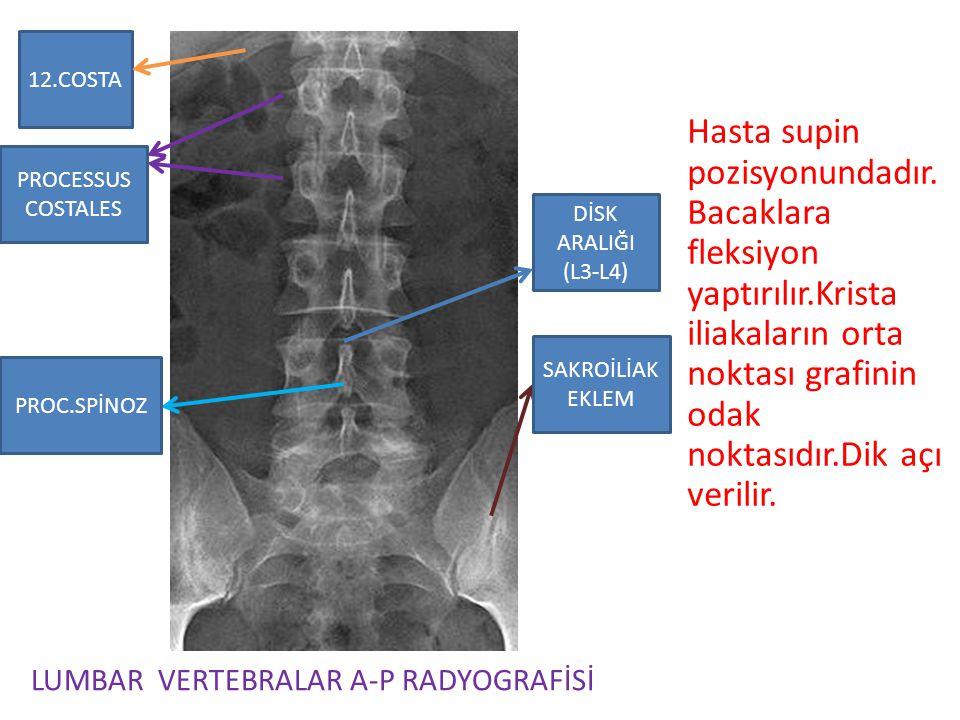 12.COSTA Hasta supin pozisyonundadır.Bacaklara fleksiyon yaptırılır.Krista iliakaların orta noktası grafinin odak noktasıdır.Dik açı verilir.