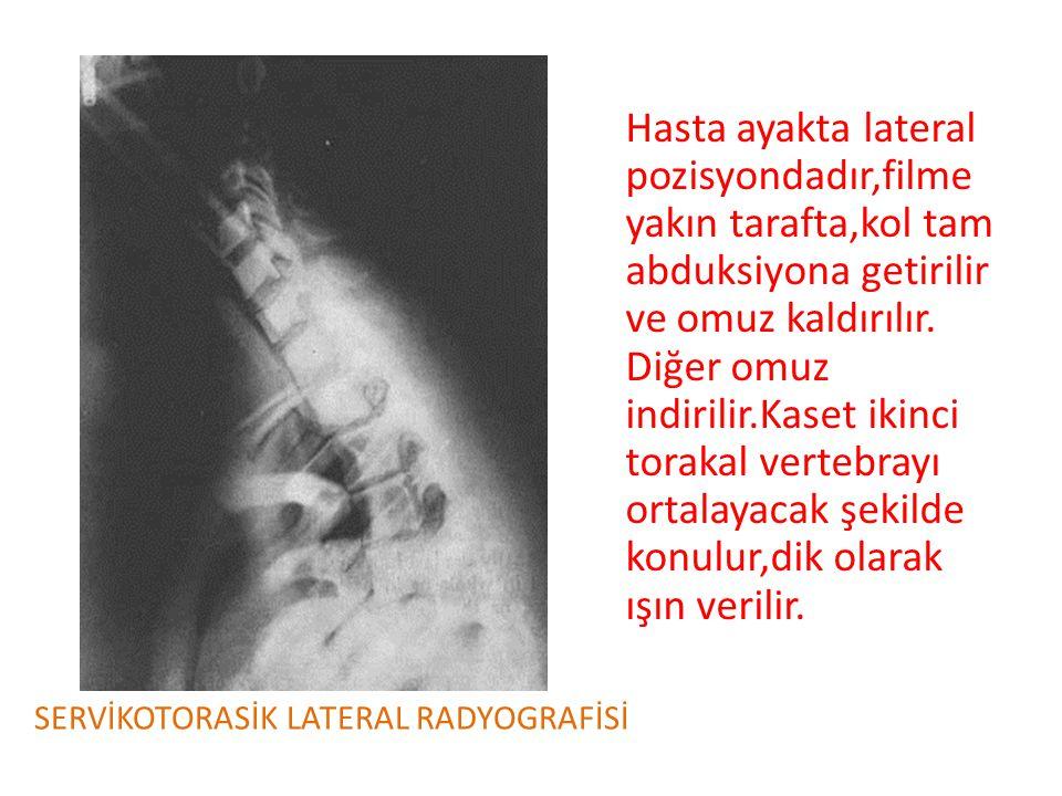 Hasta ayakta lateral pozisyondadır,filme yakın tarafta,kol tam abduksiyona getirilir ve omuz kaldırılır. Diğer omuz indirilir.Kaset ikinci torakal vertebrayı ortalayacak şekilde konulur,dik olarak ışın verilir.