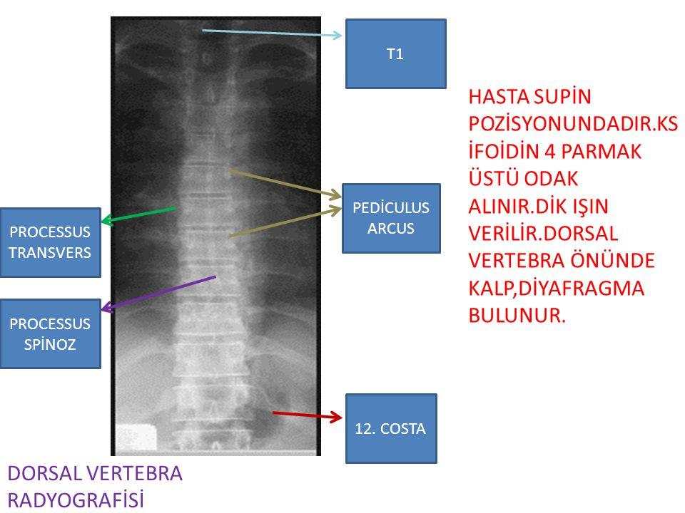 DORSAL VERTEBRA RADYOGRAFİSİ